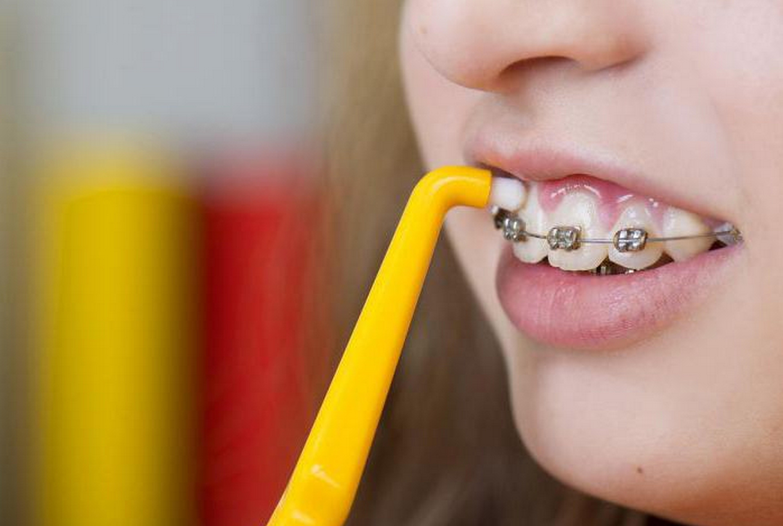Монопучковая зубная щетка – подробное описание